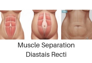 muscle separation